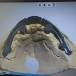 1.1 Diseño de Barra para Prótesis Hibrida en  CAD-CAM