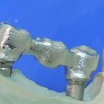 2.2 Diseño de PPF en CAD-CAM