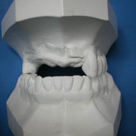 Caso 4. Prótesis Híbrida sobre implantes. Antes Modelos iniciales 1