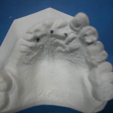 Caso 4. Prótesis Híbrida sobre implantes. Antes Modelos iniciales 2
