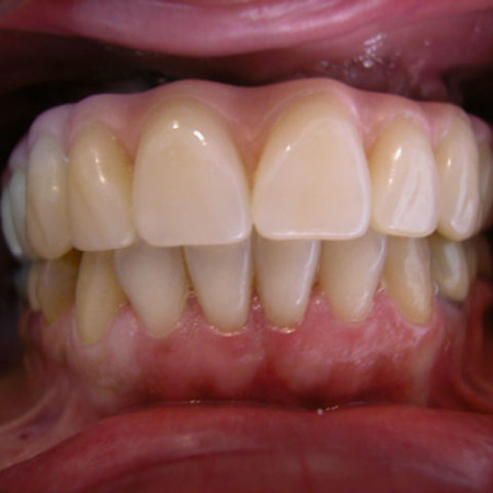 Caso 4. Prótesis Híbrida sobre implantes. Después 2