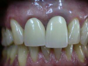 Caso 2. Implante diente unico 21. Antes