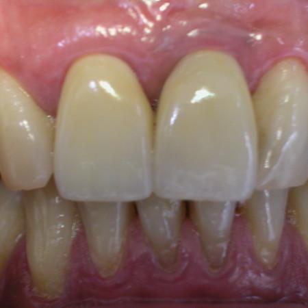 Caso 2. Implante diente unico 21. Despues